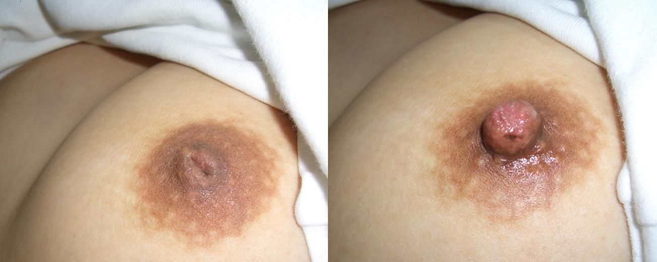 【おっぱい】巨乳だから陥没乳首になるのか、陥没乳首は巨乳じゃないとならないのか【28枚】 10
